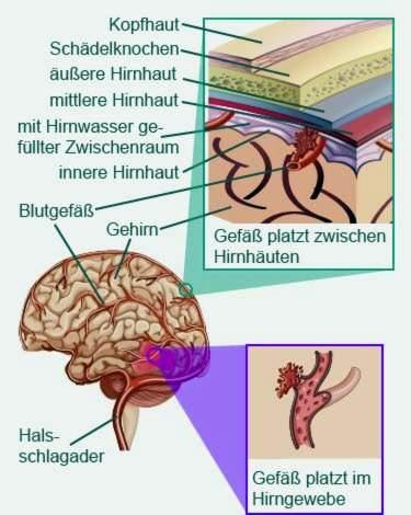 smegenų indai su hipertenzija