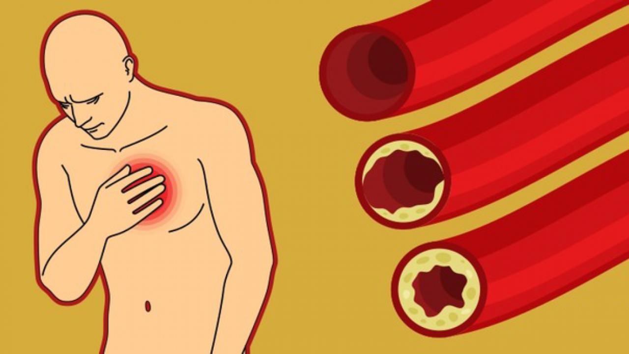 8 patarimai, padėsiantys išvalyti užsikimšusias arterijas