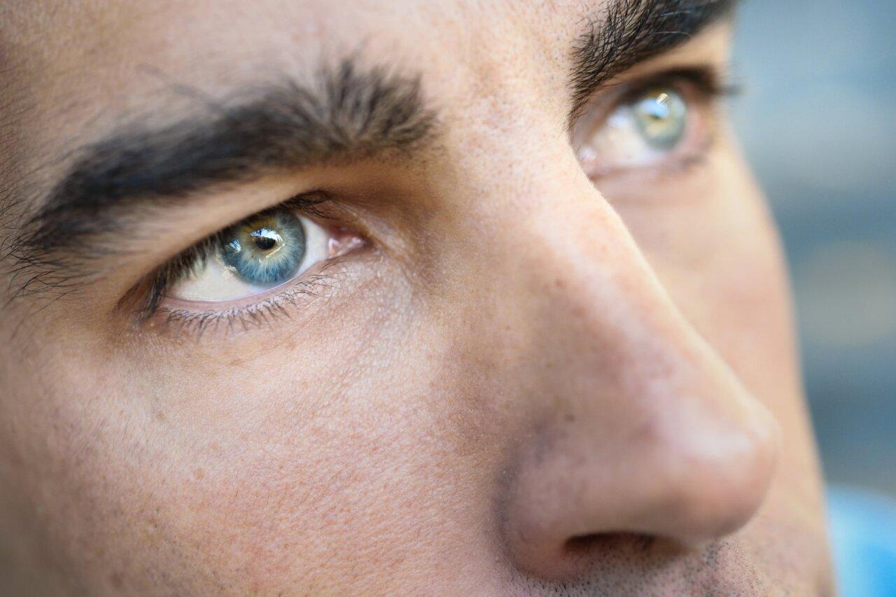 Akių hipertenzija