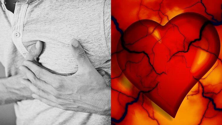 Įsidėmėkite šiuos 7 tyliojo infarkto simptomus: tai gali išgelbėti gyvybę