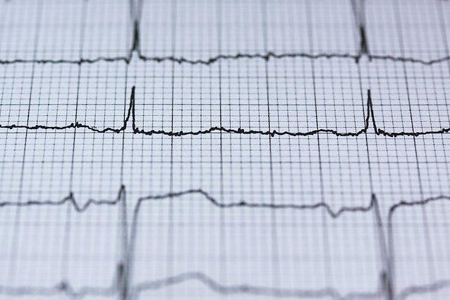 širdies ritmas paveikė sveikatą