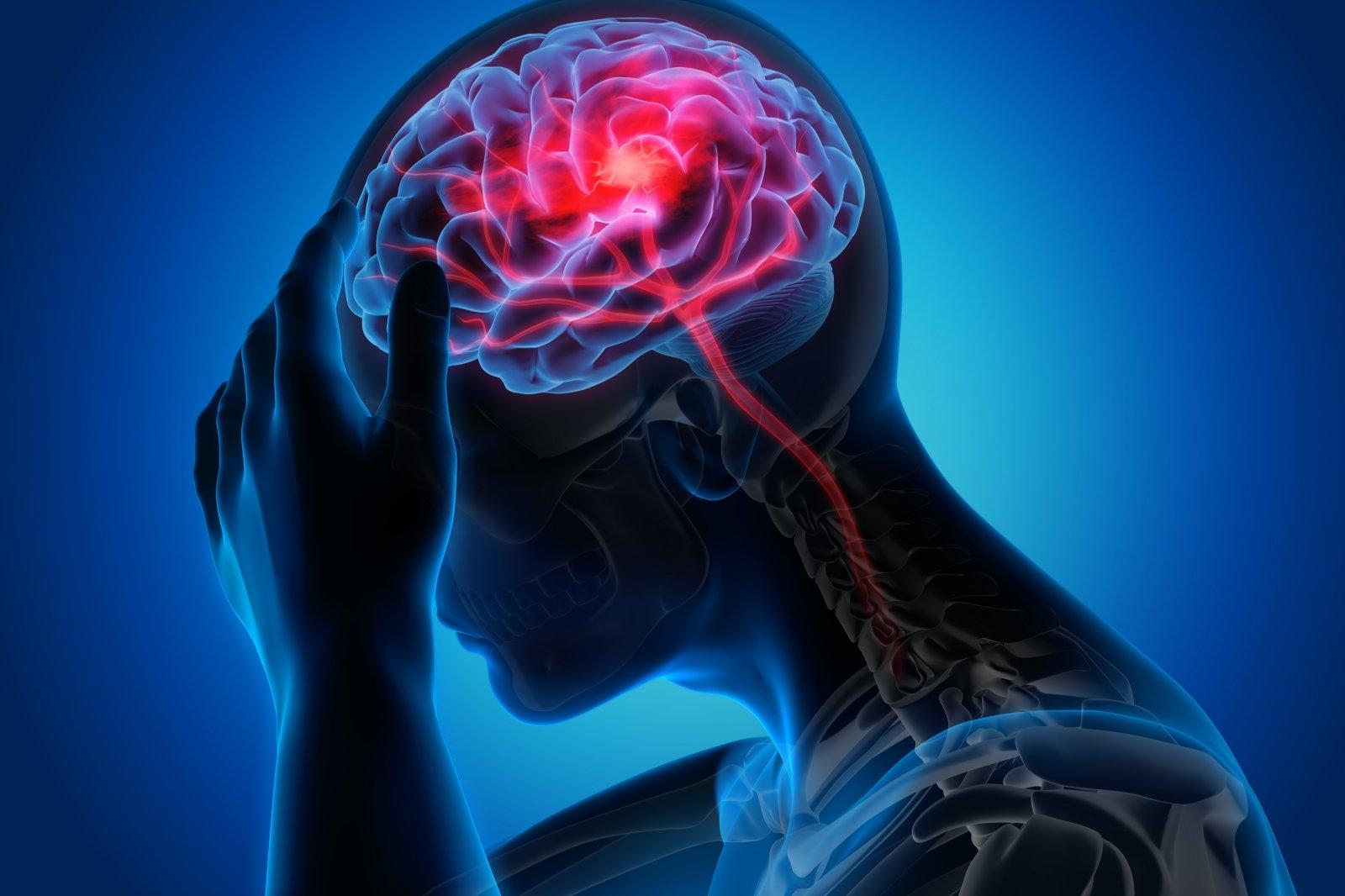 Insultas (smegenų infarktas). Simptomai, priežastys, eiga ir gydymas - taf.lt