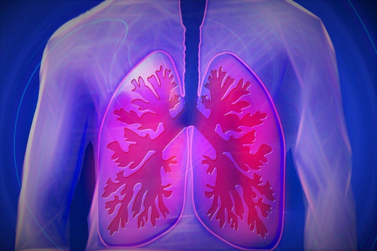 Ką derėtų žinoti apie plaučių vėžį? – taf.lt