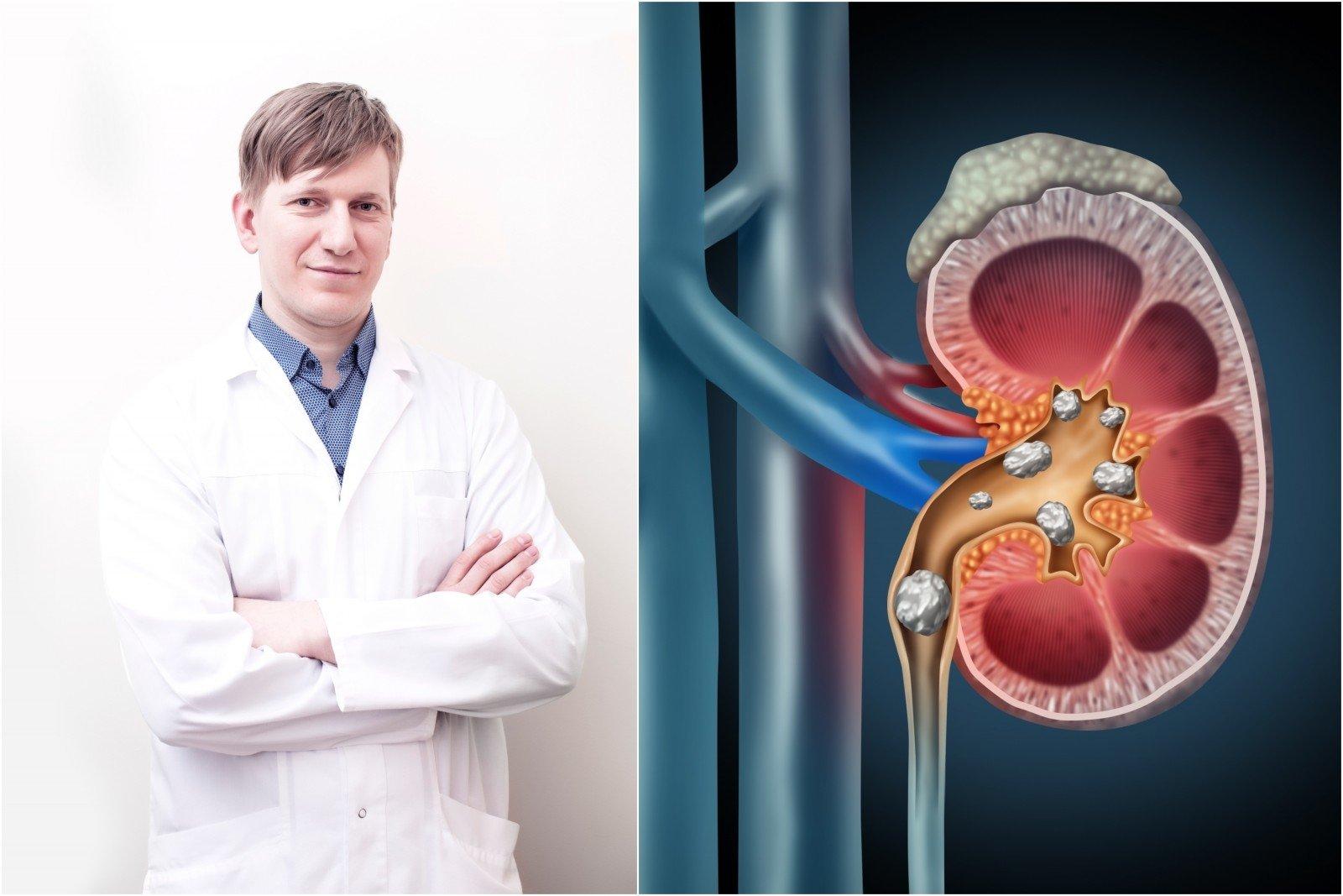 inkstų hipertenzija, nei gydyti liaudies vaistus kraujavimas iš gimdos su hipertenzija
