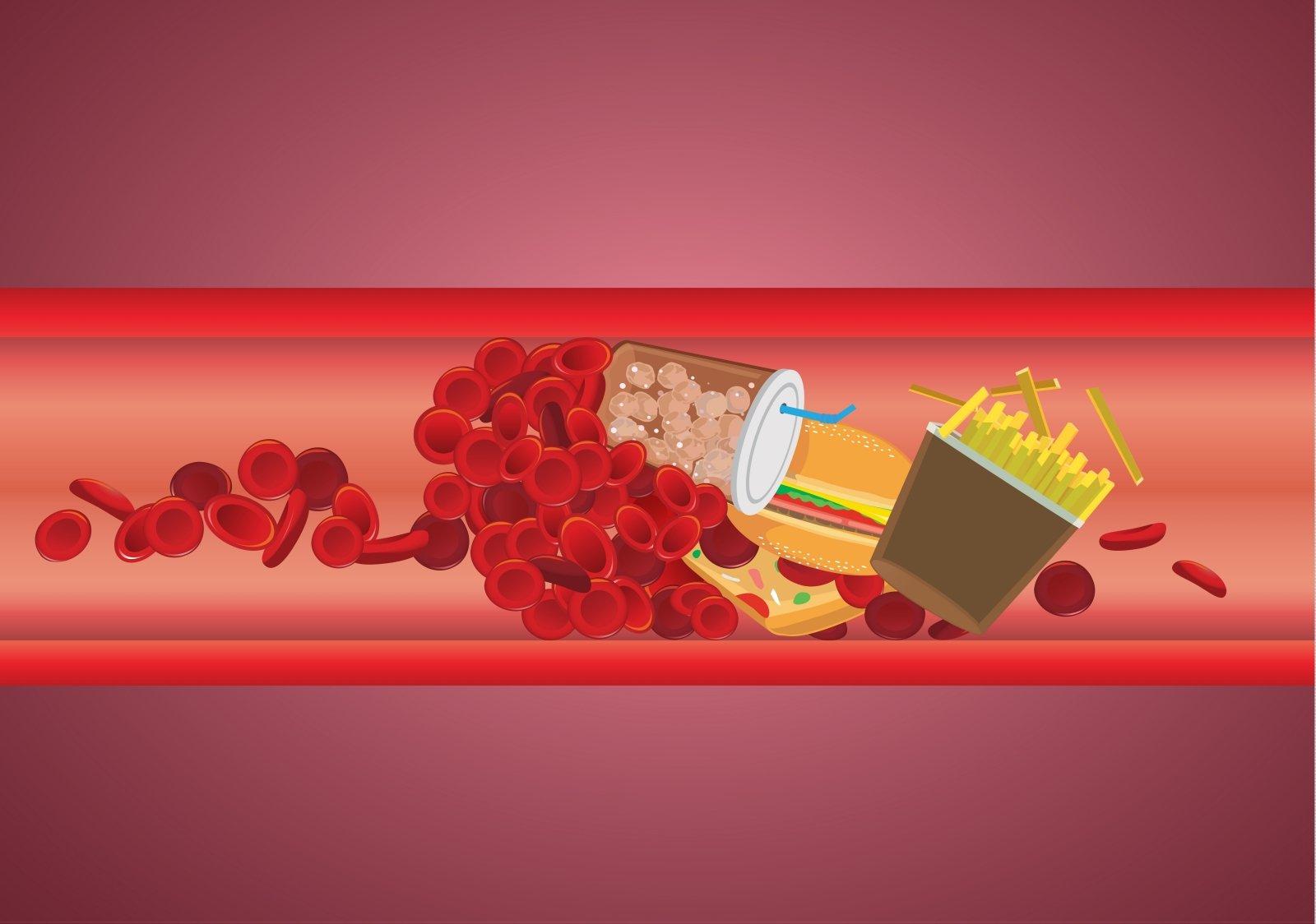 5 būdai, kaip be vaistų sumažinti cholesterolio kiekį kraujyje