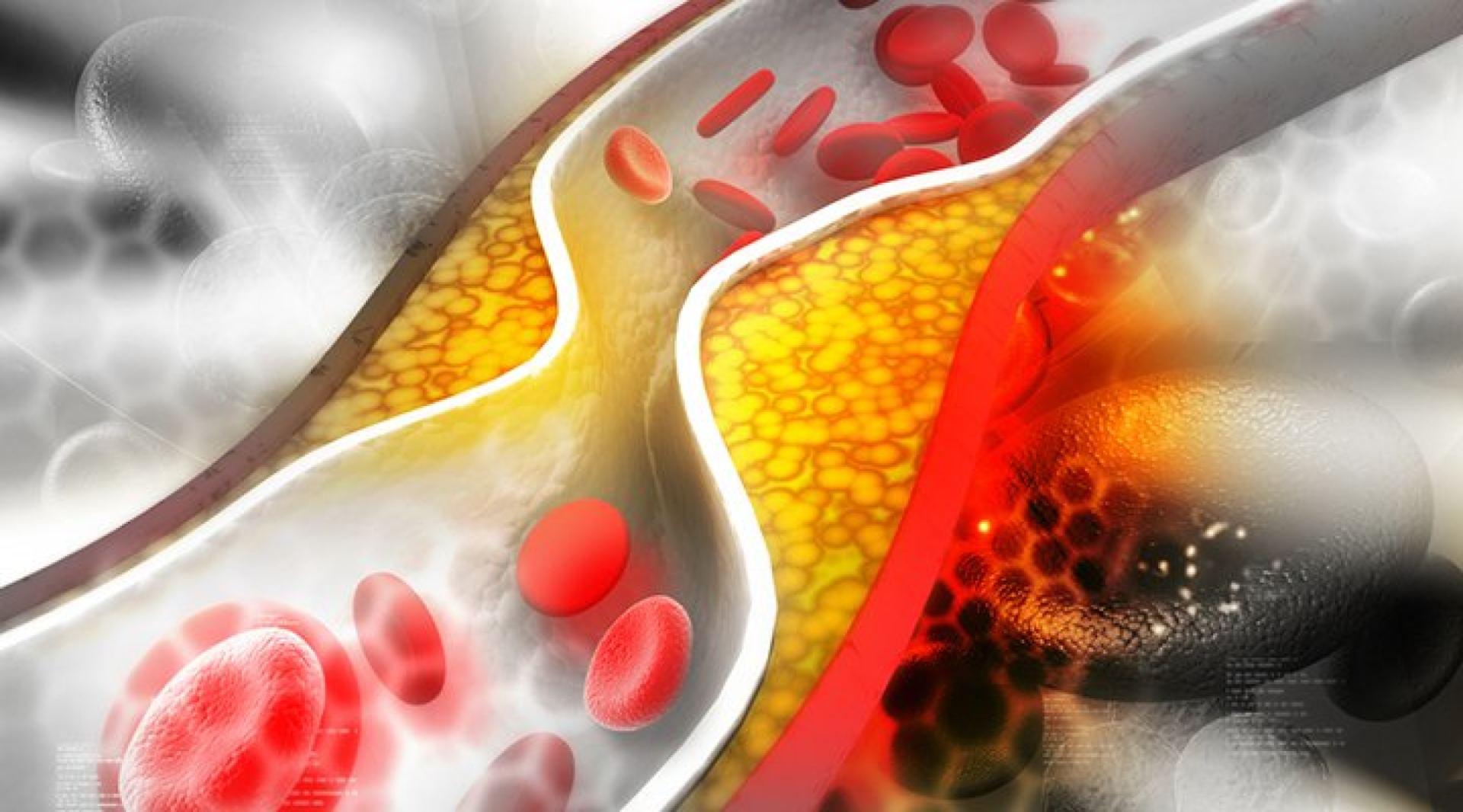 išeminė širdies liga nhs pasirenka jūsų sveikatą