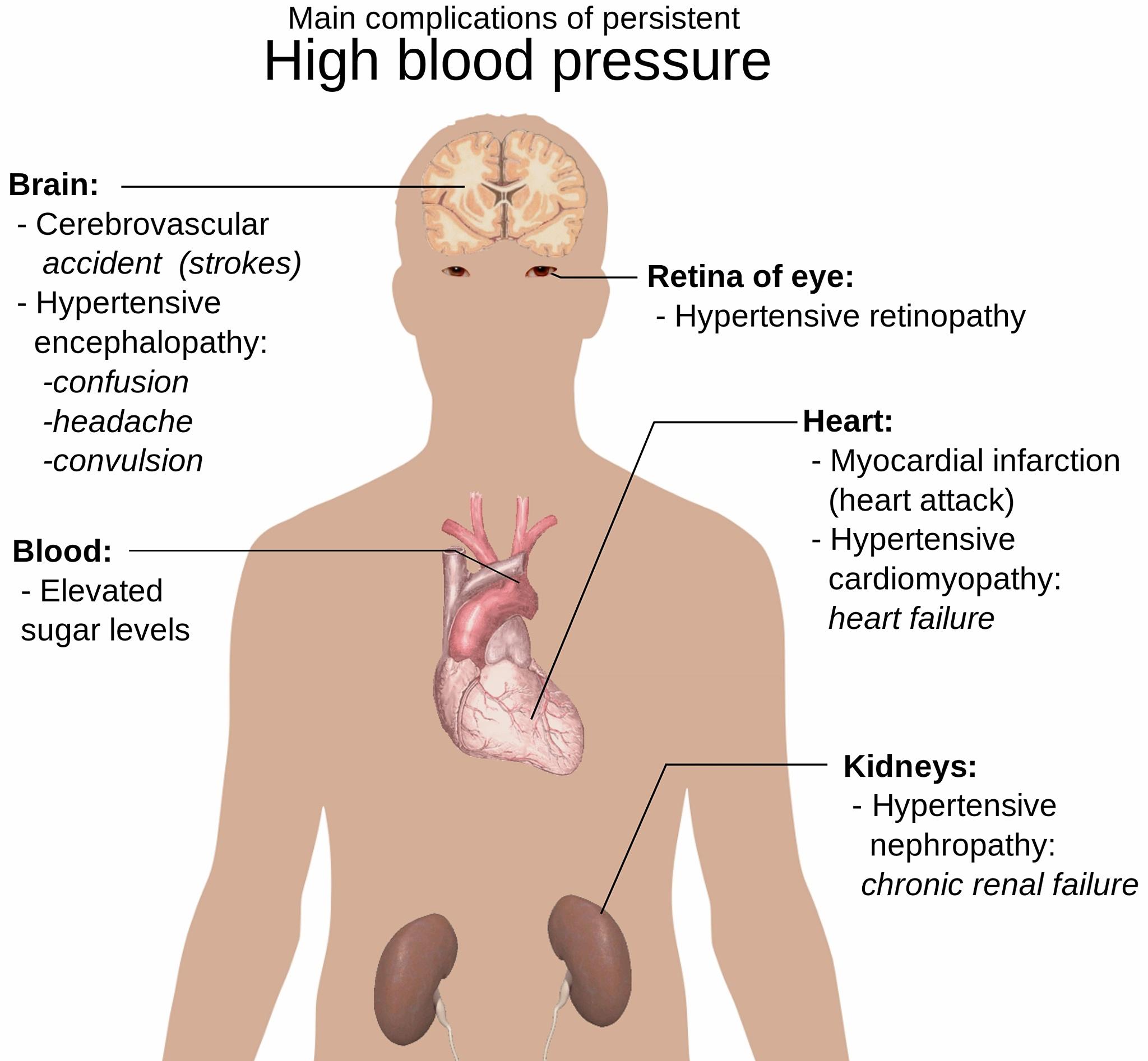 zemas spaudimas kurie išgydė hipertenziją