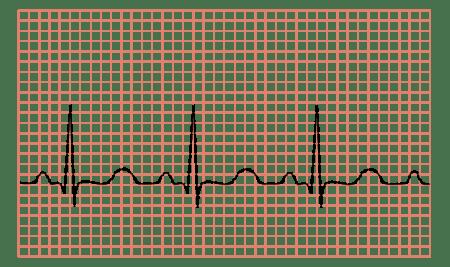hipertenzija ir šaltas oras