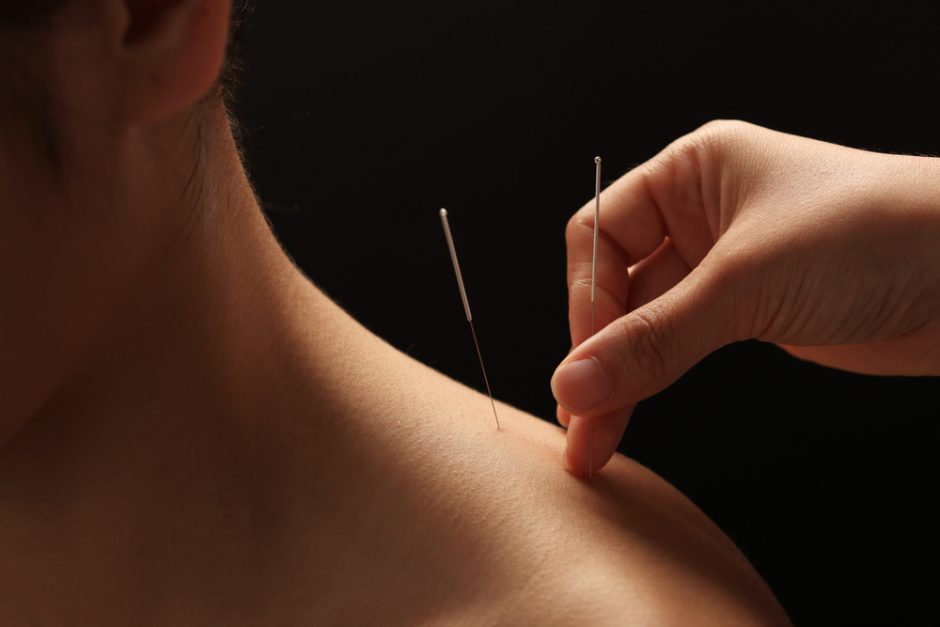 Homeopat | Akupunktūra