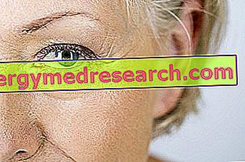 Moterų ir vyrų hipertenzijos simptomai - Insultas -