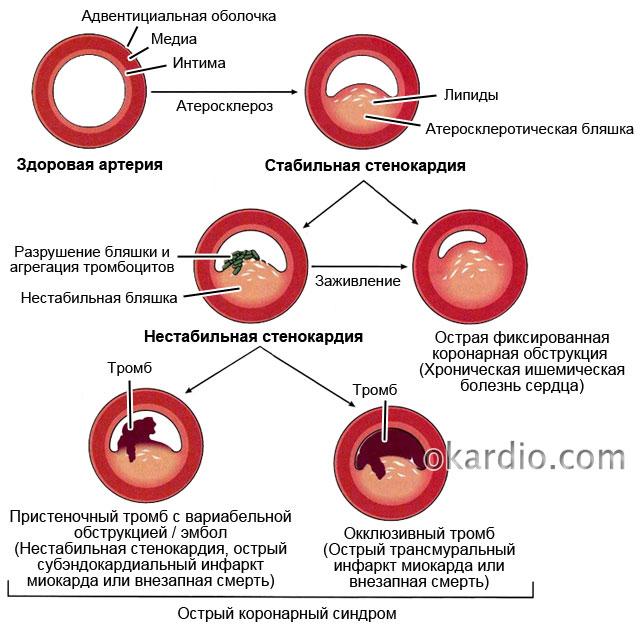 hipertenzija ir hipertoniškumas labas rytas amerika sirdies sveikata