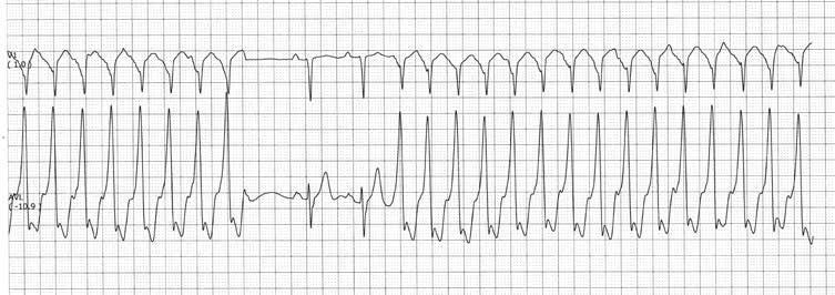Širdies kairiojo skilvelio hipertrofija - EKG požymiai