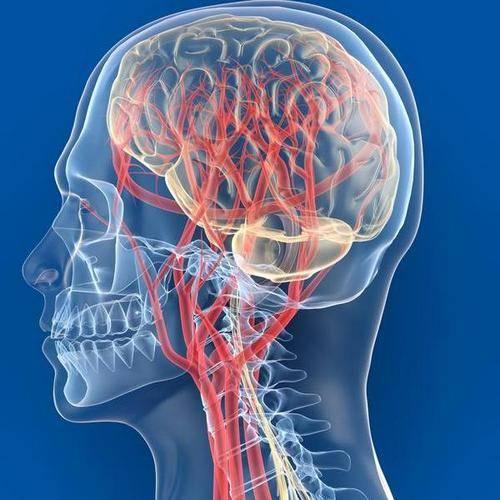 Smegenų smegenų sukrėtimas - Hipertenzija - November