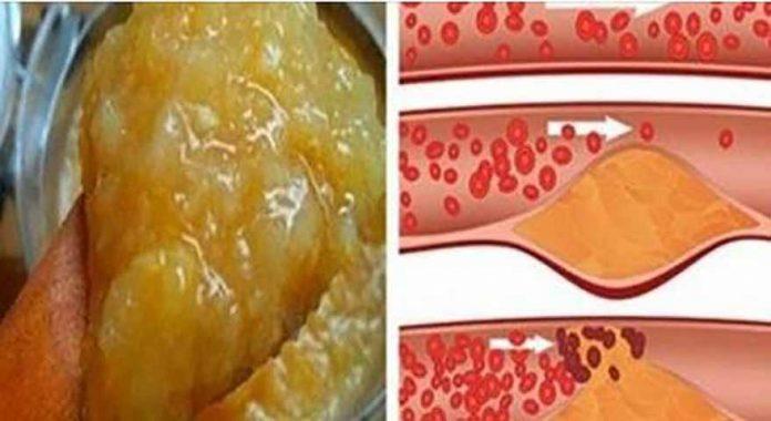 hipertenzija jauname amžiuje apžvalgos