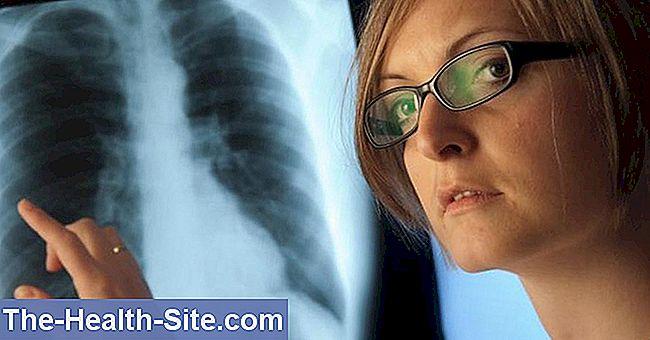 plaučių hipertenzija sukelia