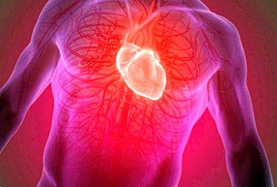 Kaip stiprinti liaudies gynimo širdį ir kraujagysles namuose? 5 paprastos ir veiksmingos parinktys