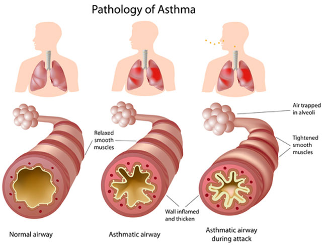 Bronchinė (bronchų) astma. Simptomai, priežastys, eiga ir gydymas
