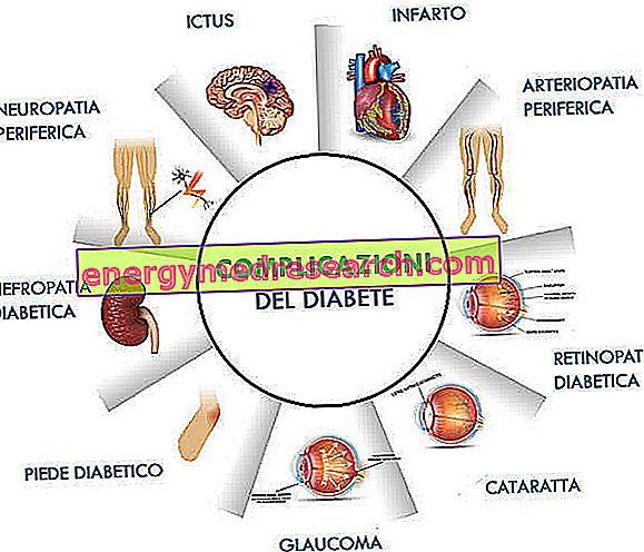 hipertenzijos ir 2 tipo cukrinio diabeto receptai