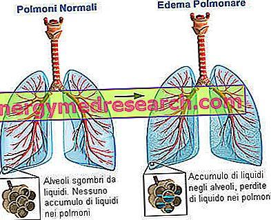 Arterinė hipertenzija, kraujagyslių apsauga ir lercanidipinas