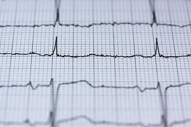 kuris straipsnis yra hipertenzija ką galima pradurti hipertenzija