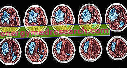 Galvos smegenų insultas