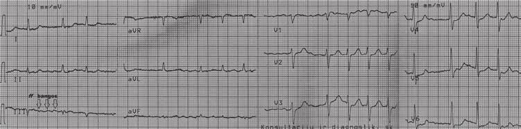 sergant 1 stadijos hipertenzija, galima naudoti sintetinę kilmę