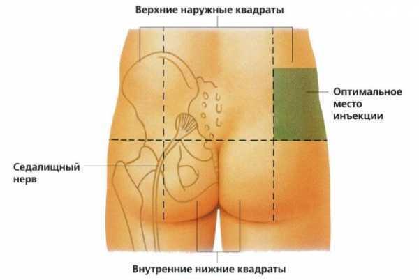 hipertenzinio tipo vds su hipertenzija