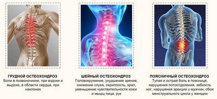Gimdos kaklelio osteochondrozės hipertenzija: gydymas