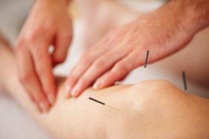 akupunktūra sergant hipertenzija
