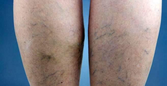 Kojų venų trombozė. Simptomai, priežastys, eiga ir gydymas