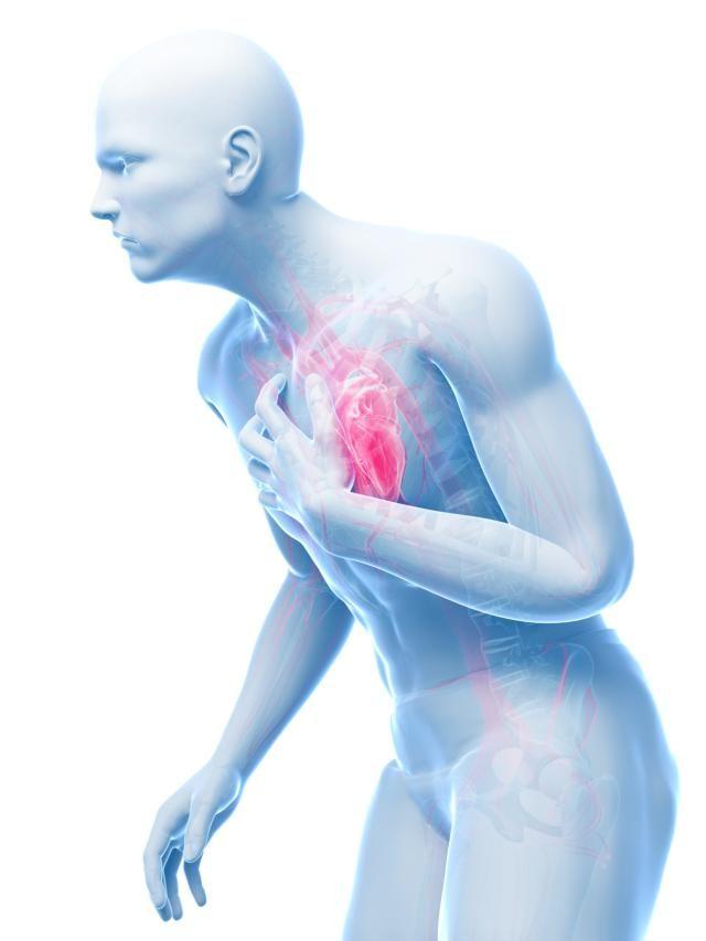 Krūtinės angina. Simptomai, priežastys, eiga ir gydymas