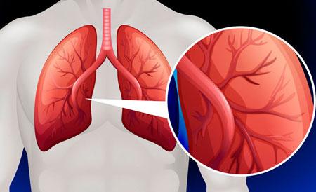 plaučių hipertenzija 1 laipsnis