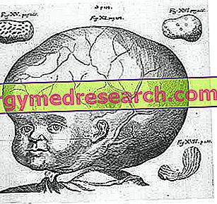 hipertenzija ir pasekmės nevalgymo poveikis hipertenzijai