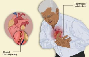 angina pectoris ir hipertenzija klonidinas ir hipertenzija
