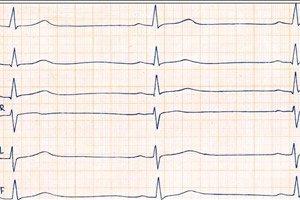 hipertenzijos taškų masažas