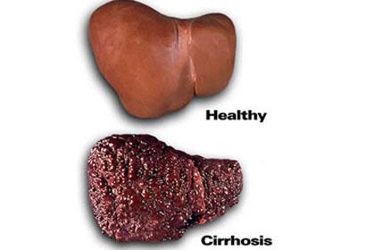 vikazolis nuo hipertenzijos hipertenzija padidino žemesnį slėgį
