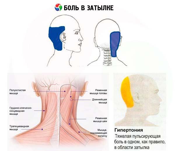 Kraujo spaudimas osteochondrozėje - Kyphosis -