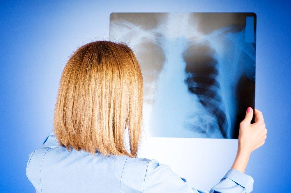 hipertenzija sergant plaučių vėžiu