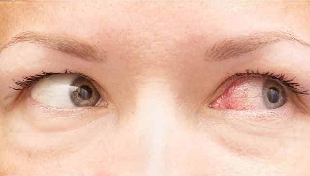 Skrenda prieš akis - Simptomai - November