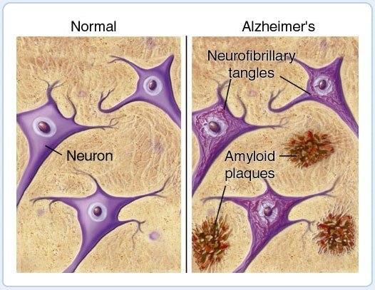 alzheimerio liga ir hipertenzija