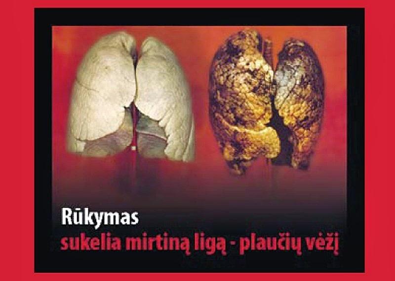 karinės kortos hipertenzija hipertenziją gydykite sultimis