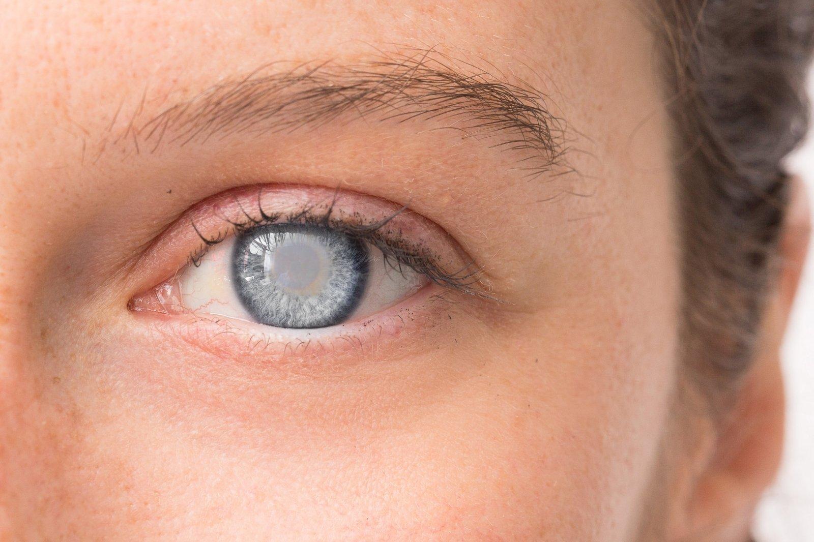 glaukoma su hipertenzija