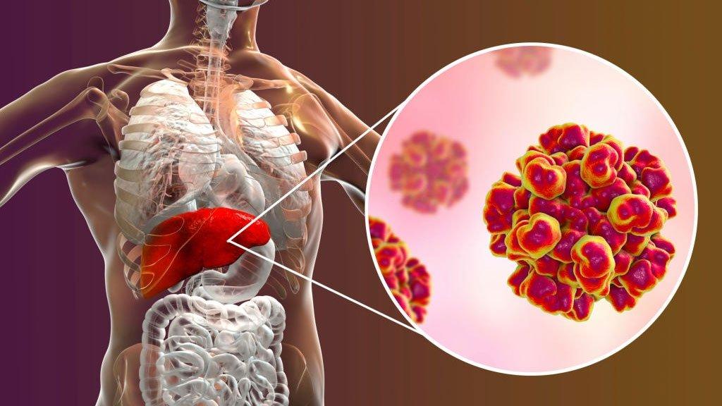 hepatitas ir hipertenzija