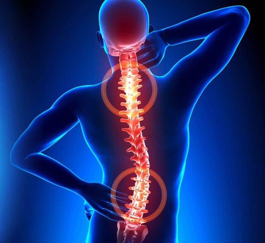 Kaip gimdos kaklelio osteochondrozė veikia spaudimą? - Myositis -