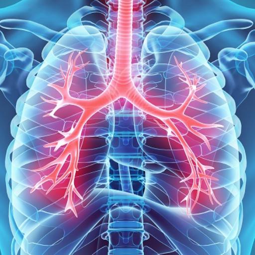 kaip gydyti hipertenzijos bronchitą tapti neįgaliu hipertenzija