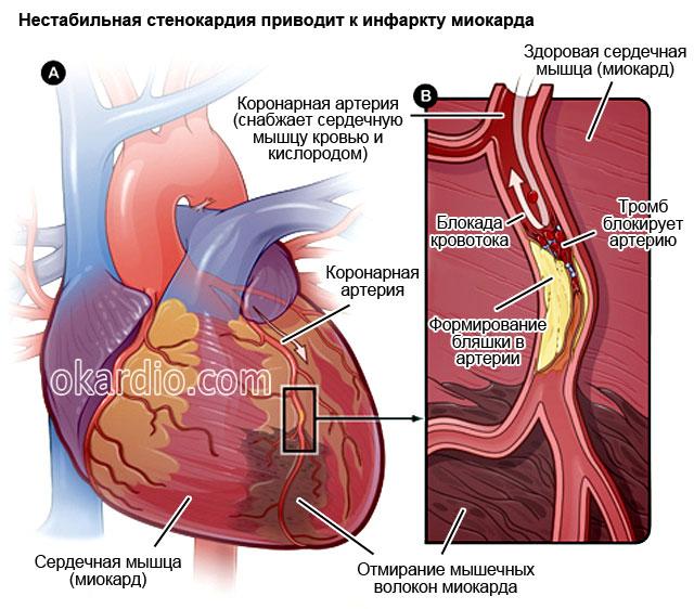 Skausmas krūtinėje – ar man vystosi miokardo infarktas? | InMedica klinika