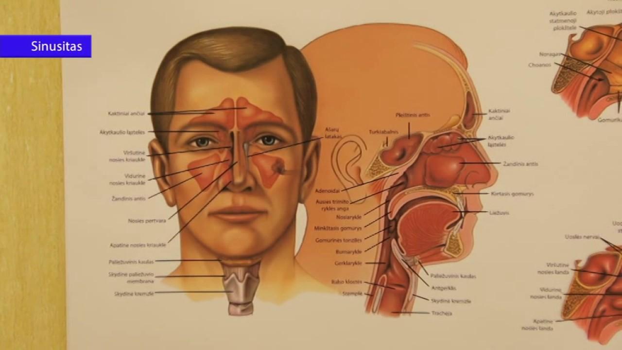 Triukšmas galvoje: priežastys ir gydymas namuose - Pleuritas