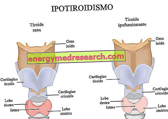 hipofizės adenomos hipertenzija
