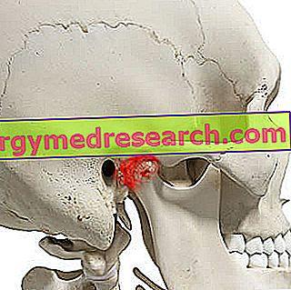 kas yra kaukolės hipertenzija
