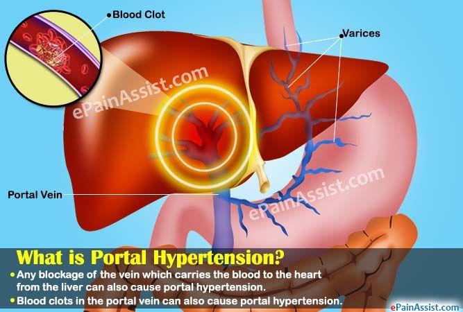 portali hipertenzija